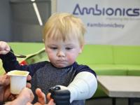 Une prothèse révolutionnaire pour enfant imprimée avec Stratasys