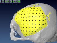 Une prothèse crânienne en titane conçue avec VISI CFAO